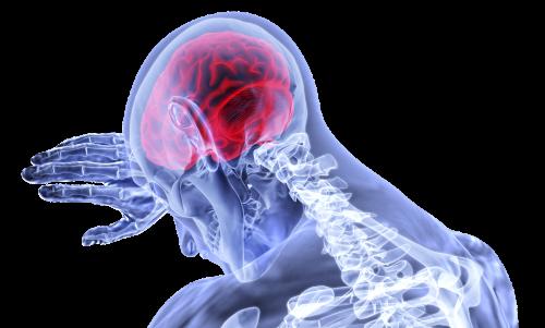 Gehirn stütz auf der Hand